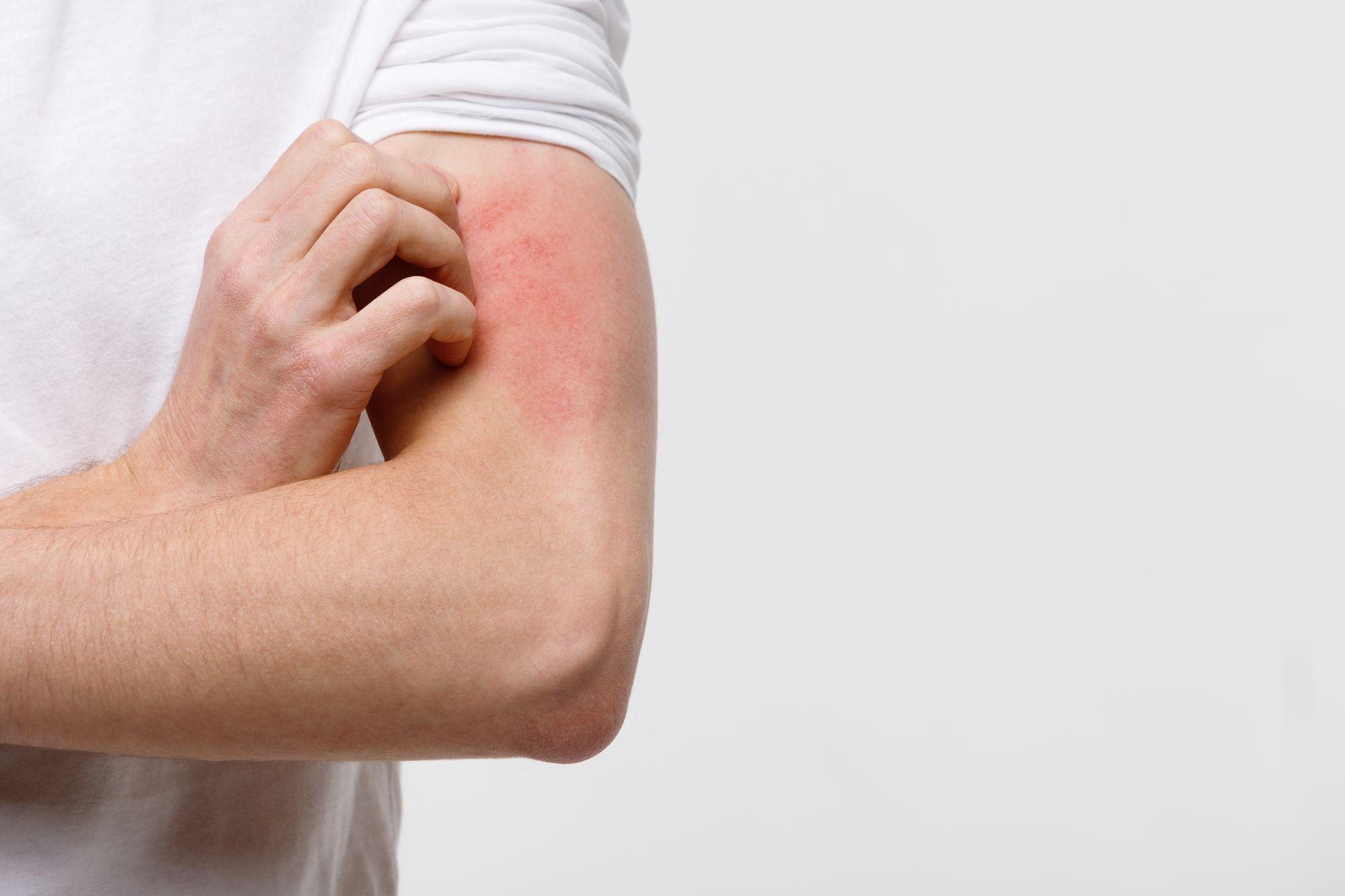 Pele irrita por resposta imunológica. (Reprodução/Freepik)